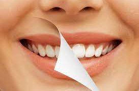 Отбеливание зубов: преимущества и существующие методы
