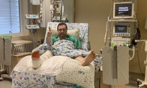 Губернатор Смоленской области перенёс третью операцию после перелома ноги