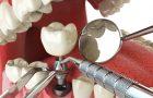 Как проходить имплантация в клинике «Доктор Лопатин»