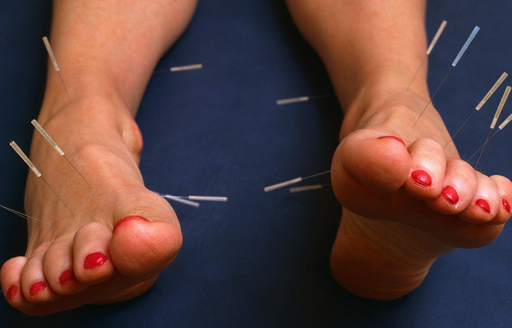 a look at the chinese tradition of acupuncture
